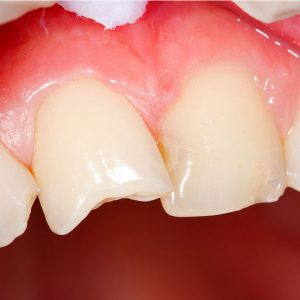 close up of teeth in a person's mouth