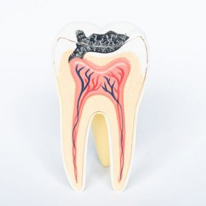 model of a tooth affected by a cavity sitting on a white surface