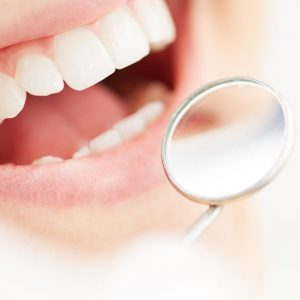 close-up of a woman opening her mouth and smiling with a dental mirror in front of her teeth