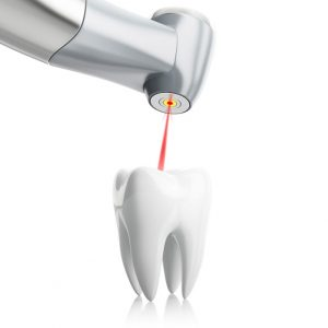 digital image of a laser being used to work on a tooth