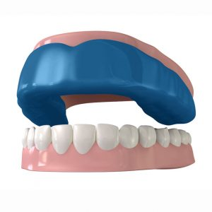 digitally rendered image of an upper and lower jaw with a mouthguard over the top arch of teeth