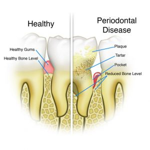 chart of a tooth affected by periodontal disease versus a healthy tooth