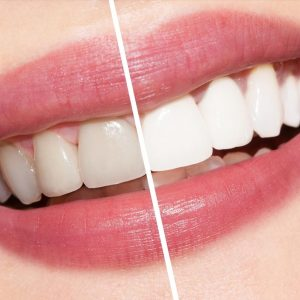 picture of a woman smiling with half of her teeth whitened and the other half before whitening