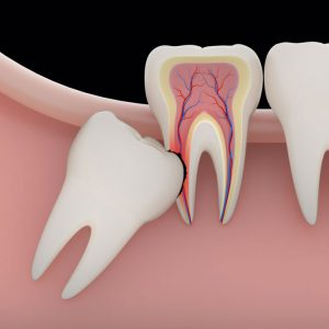 digital graphic image of a wisdom tooth growing in harmfully