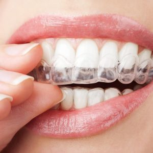 ClearCorrect clear orthodontic aligners