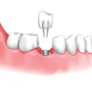 Dental implant restoration with customized crown