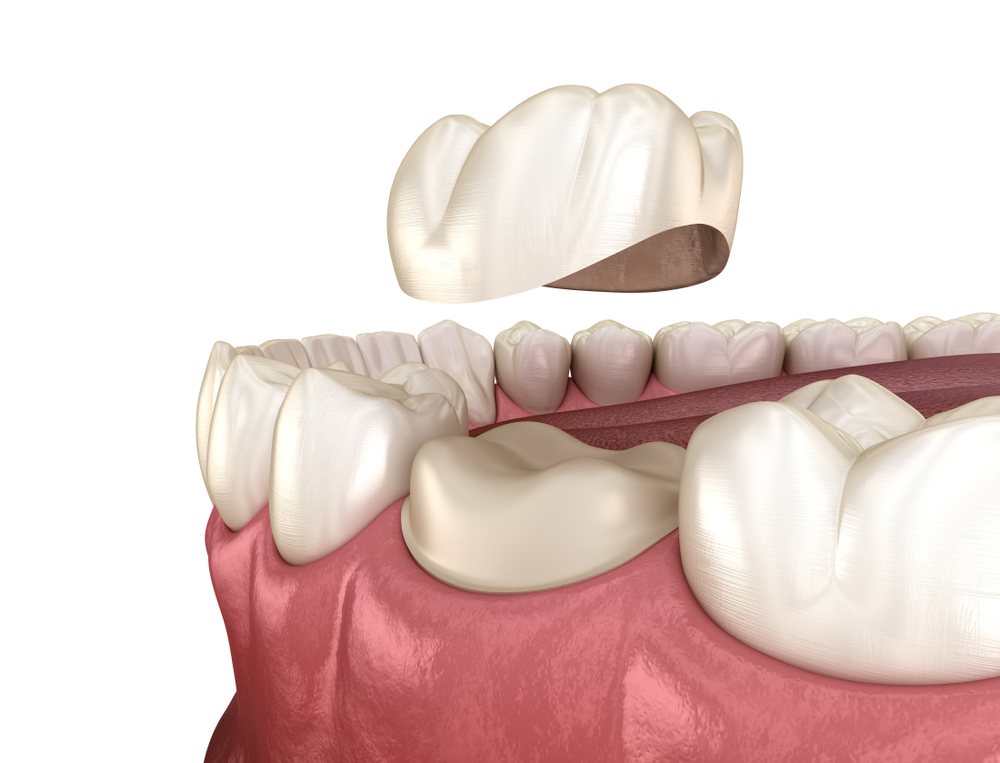 A diagram depicting a dental crown above the worn down tooth it's restoring.